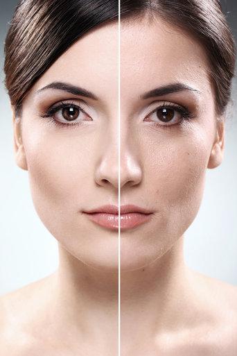Derfor skal du få en botox-behandling